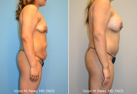 before and after mommy makeover with breast implants and tummy tuck | Victor Perez, MD