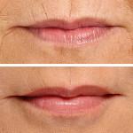 Want Natural Looking Lips?
