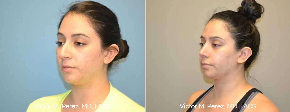 before and after rhinoplasty - nose surgery Kansas City