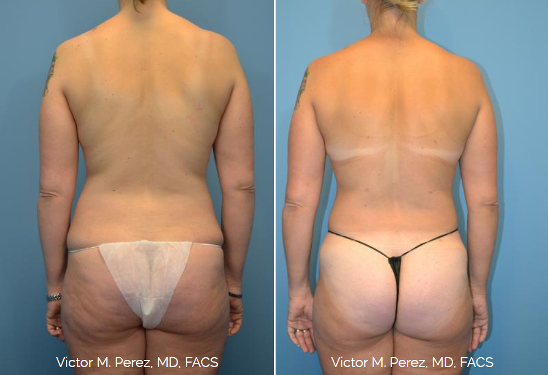 Smartlipo for the back and butt Kansas City | Victor Perez, MD