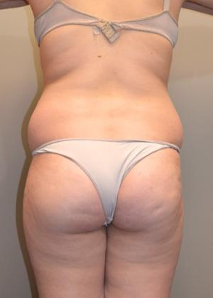 Liposuction 360 Traditional Liposuction