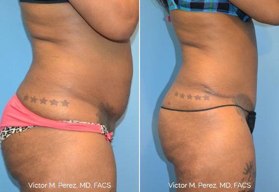 before and after tummy tuck, scarring folded into waistline