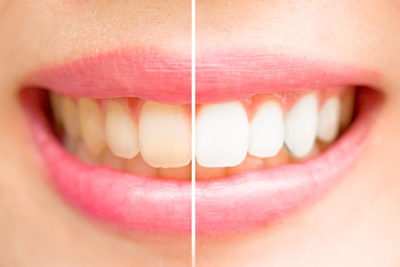 yellow teeth before and after professional whitening