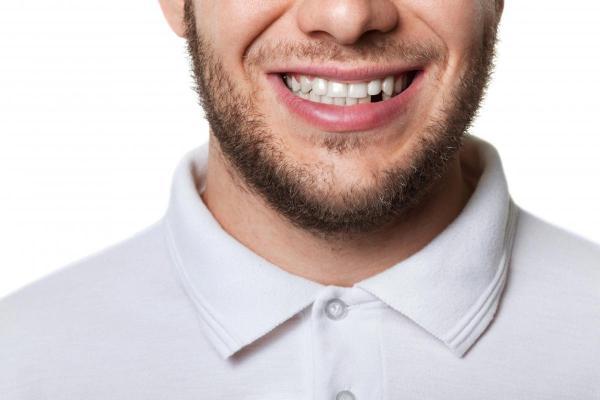 5 Ways Dental Implants Improve Your Health   Salt Lake City