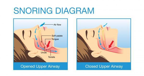 Snoring diagram for obstructive sleep apnea