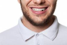Do Dental Implants Improve Your Health?
