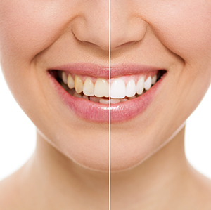 Salt Lake City Dentist Shows Teeth Whitening Results