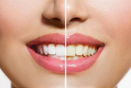 side-by-side comparison of teeth whitening results