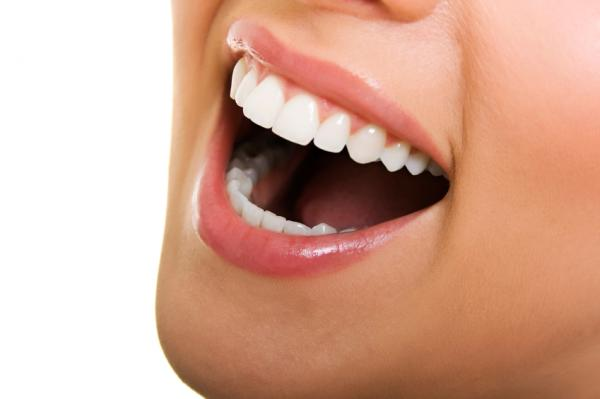 teeth whitening solutions salt lake city dentist